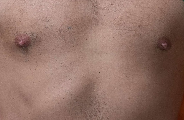 男性 乳首